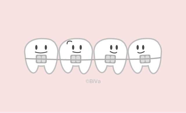 歯とアルツハイマー病の関係が動物実験で解明されたらしい