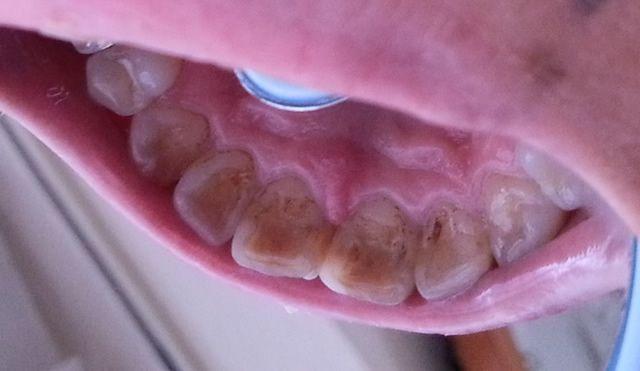タバコがもたらす歯への悪影響その2:ヤニ汚れ