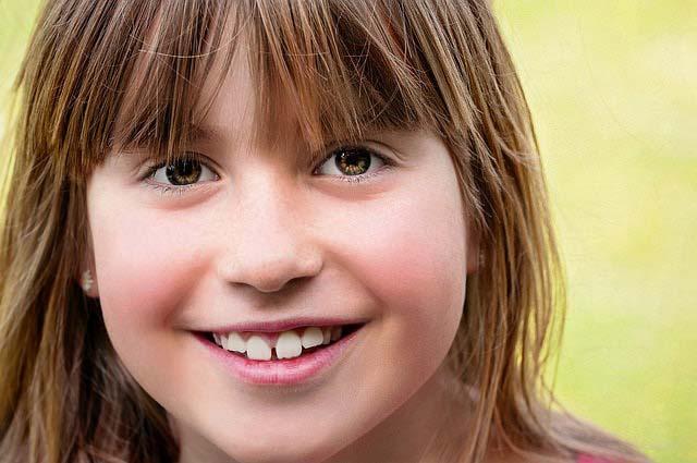 すきっ歯を一番安く治す治療法はコレでした!