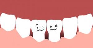 歯茎下がりは老けて見える?気になる歯茎の移植手術を調べてみた