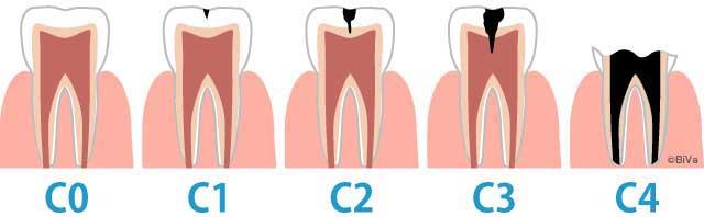 治療しなくてよい虫歯はどのレベル?