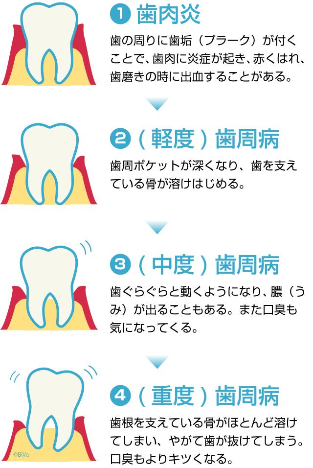 「歯周病」と診断されるまでに四段階の進行があります。第一段階は「歯肉炎」、第二段階は「軽度の歯周病」、第三段階は「中度の歯周病」、第四段階は「重度の歯周病」となります。